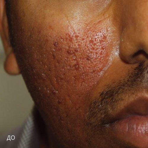 ba acne 1 - Tixel® (Израиль): Аппарат фракционного омоложения без применения лазера