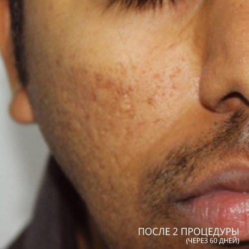 ba acne  2 - Tixel® (Израиль): Аппарат фракционного омоложения без применения лазера
